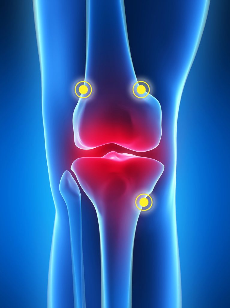 knee pain clinic in singapore